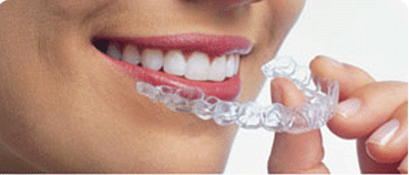 Teen Aligners Are Made Of 95